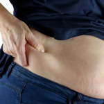 How To Get Rid Of Hip Fat? | Step-by-Step Guide