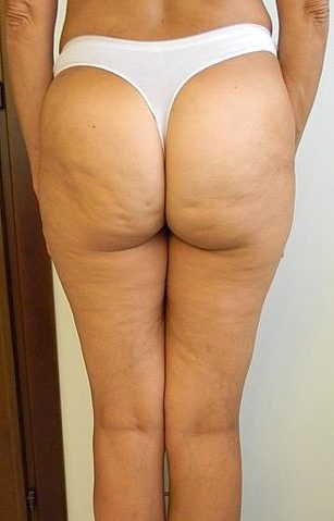 cellulite woman